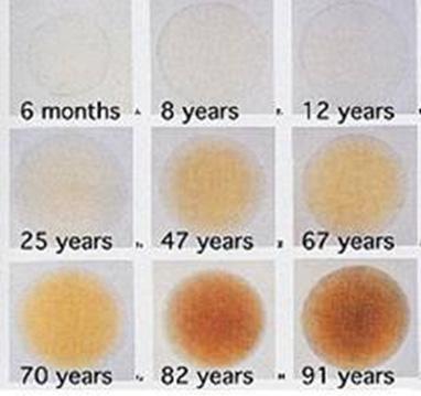 cristalino evolución